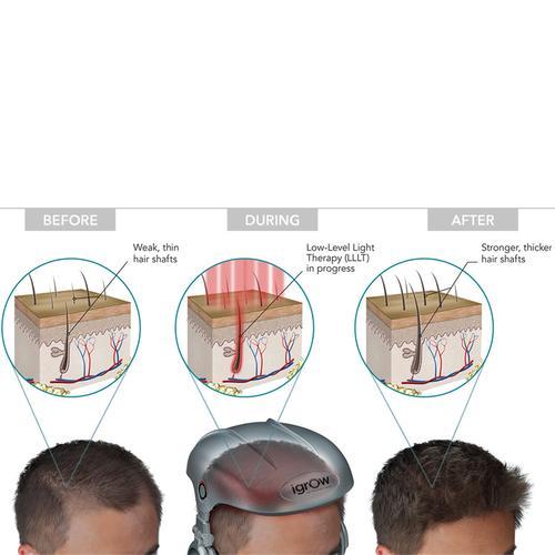 igrow hair growth system. Black Bedroom Furniture Sets. Home Design Ideas